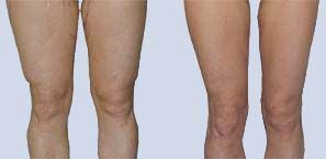 Liposuction Before and After: Knees