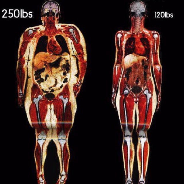 A body scan of two women: 250lbs vs 120lbs. Science and hard evidence are the best motivators!