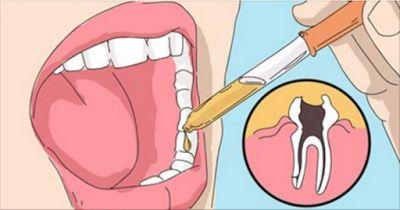 Полезные советы: Единственный способ мгновенно избавиться от зубной боли! Просто приложи к зубу, и боль уйдет мгновенно!