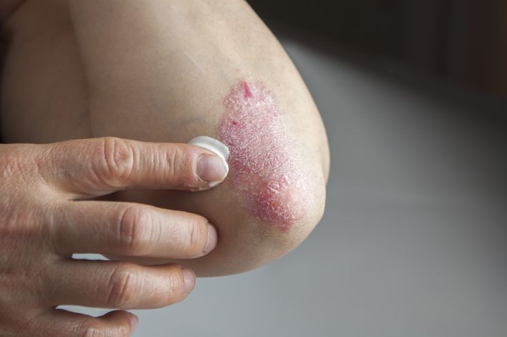 certain foods cause skin conditions like eczema