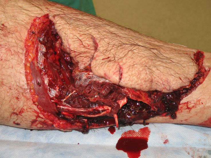shark wound images - Google Search