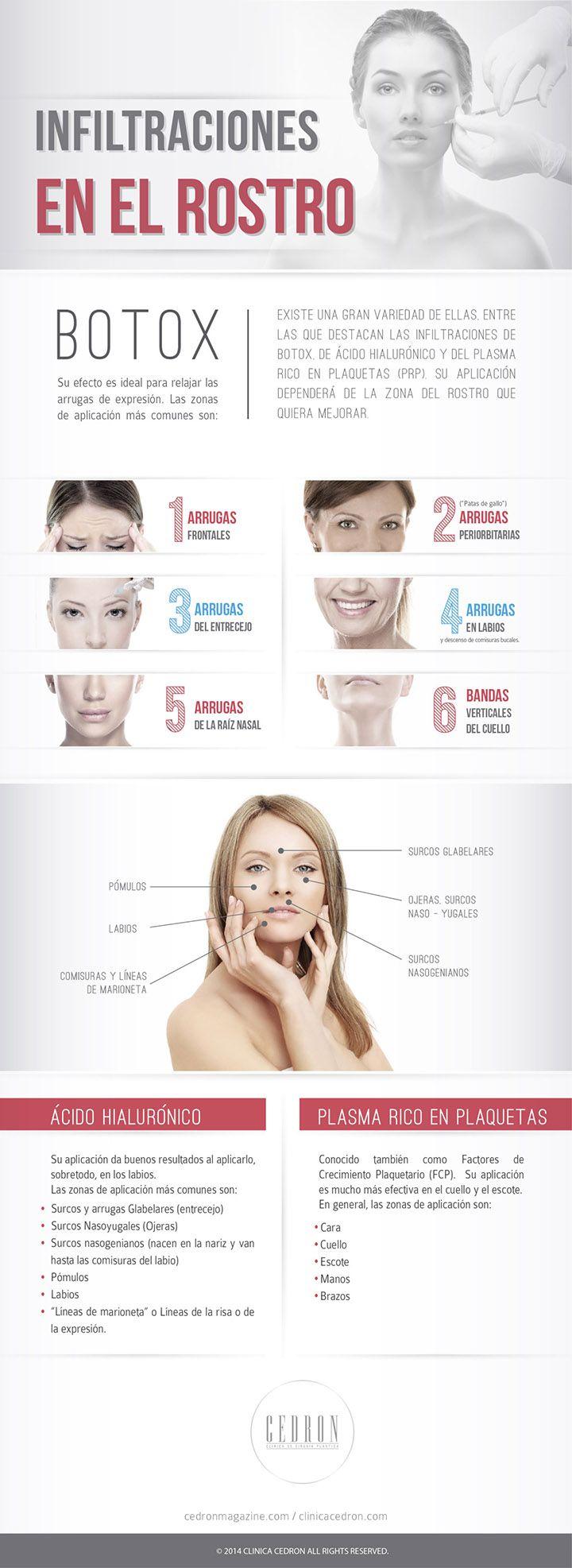 Las infiltraciones de bótox, ácido hialurónico y plasma. #infografía #bótox #belleza