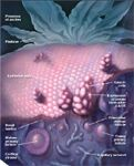 New biomarkers for ovarian cancer: OVA1 and ROMA in diagnosis
