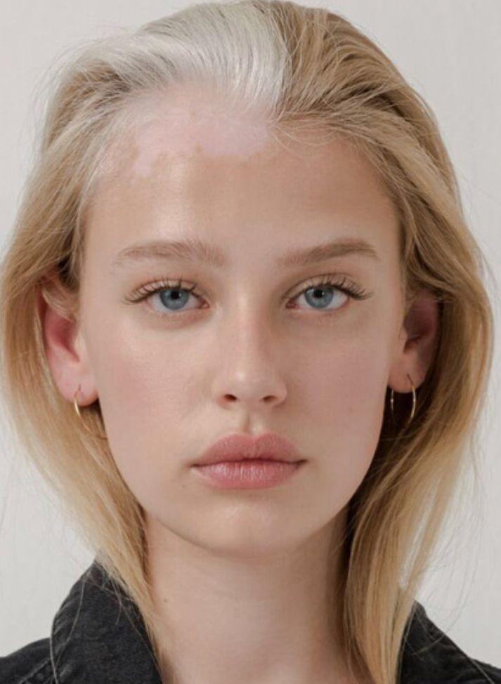 Unique Skin Strong Look Vitiligo Hair Care Tips Face
