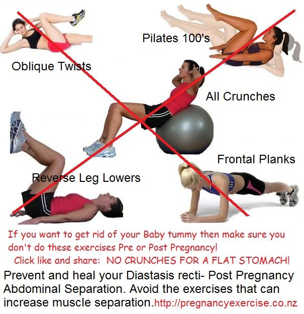 You can prevent abdominal separation during pregnancy. You just need to follow these guidelines~ Avoid Diastasis Recti During Pregnancy - pregnancyexercise.co.nz #Pregnancy #Pregnancyexercise #NoMoreMummyTummy