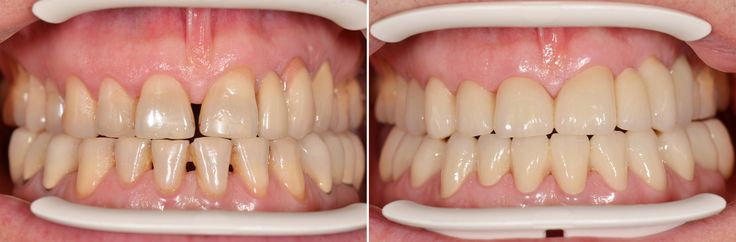 Before-after pictures of zirconia full porcelain crown restoration.