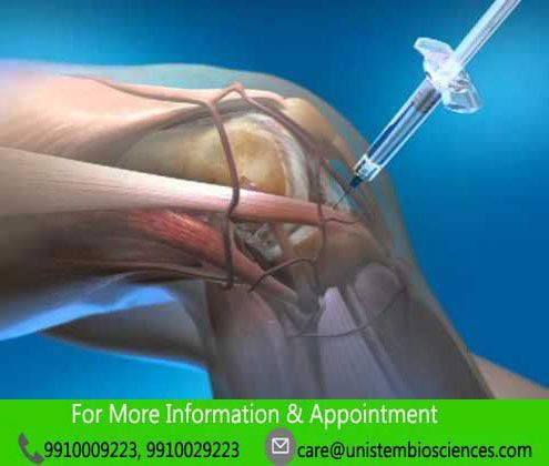 Intra-articular injection of mesenchymal stem cells for the treatment of osteoarthritis of the knee.