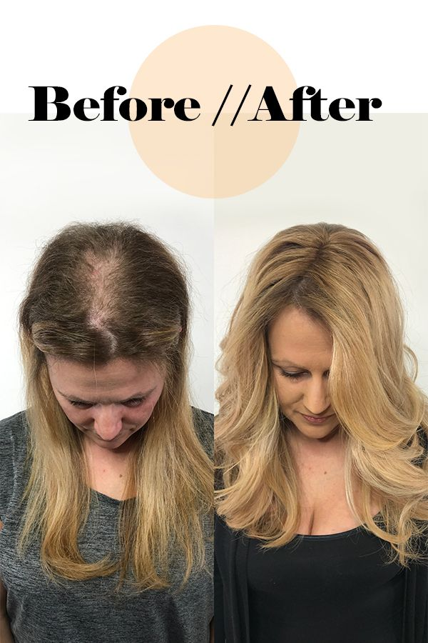 New Hope For Thinning Hair Clients Hair Loss Treatment Shampoo Hair Thinning On Top Why Hair Loss