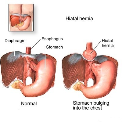 Google Password Recovery Code: Hiatal Hernia Repair Recovery