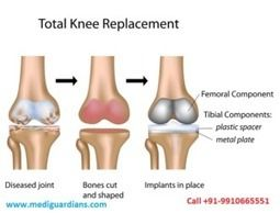 Best Affordable Cost orthopedic knee replacement surgery in india