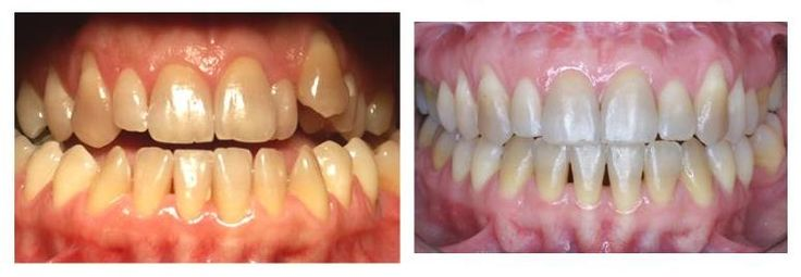 Casi clinici ortodontici Chirurgia Ortognatica di una Classe  3 scheletrica http://www.studiodentisticobalestro.com/2016/06/chirurgia-ortognatica-classe-3_3.html