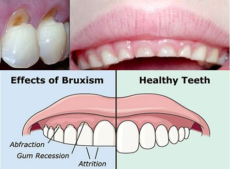 Bruxism, clenching, and grinding of teeth usually happens at night and can contribute to bone loss (gum recession follows bone loss), TMJ (jaw joint pain), headaches, teeth sensitivity, loss of tooth structure, attrition, and abfractions which are wedge shaped holes in the tooth by the gum line. The solution is usually to use a custom night guard made from your dentist which is a thin piece of plastic that is placed between the upper and lower teeth at night to keep the teeth separated and…