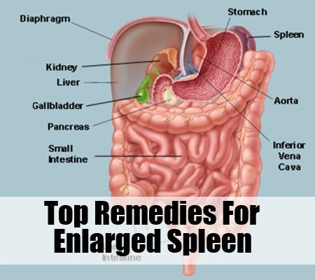 best 20+ spleen enlarged ideas on pinterest | heart murmur, visit, Cephalic Vein