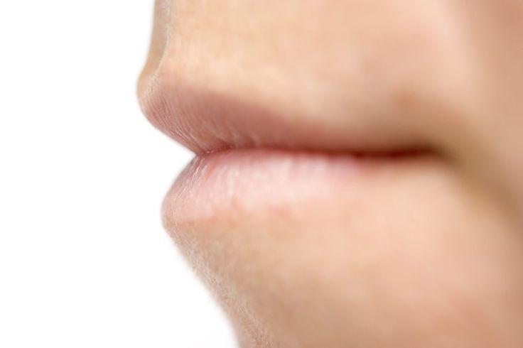 Cómo deshacerse de una llaga al lado del labio | Muy Fitness