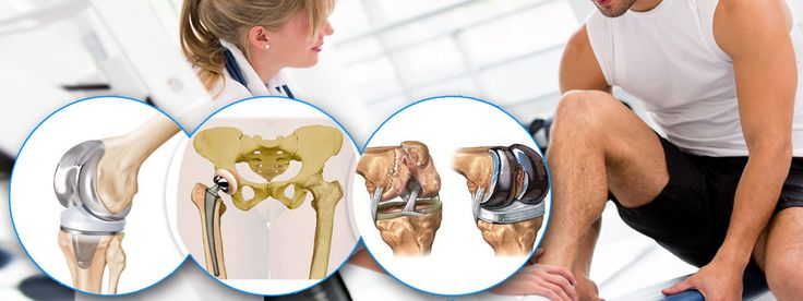 Knee replacement surgery also known as knee arthroplasty can help relieve pain and restore function in severely diseased knee joints. During knee replacement, a surgeon cuts away damaged bone and cartilage from your thighbone, shinbone and kneecap and replaces it with an artificial joint made of metal alloys, high-grade plastics and polymers.