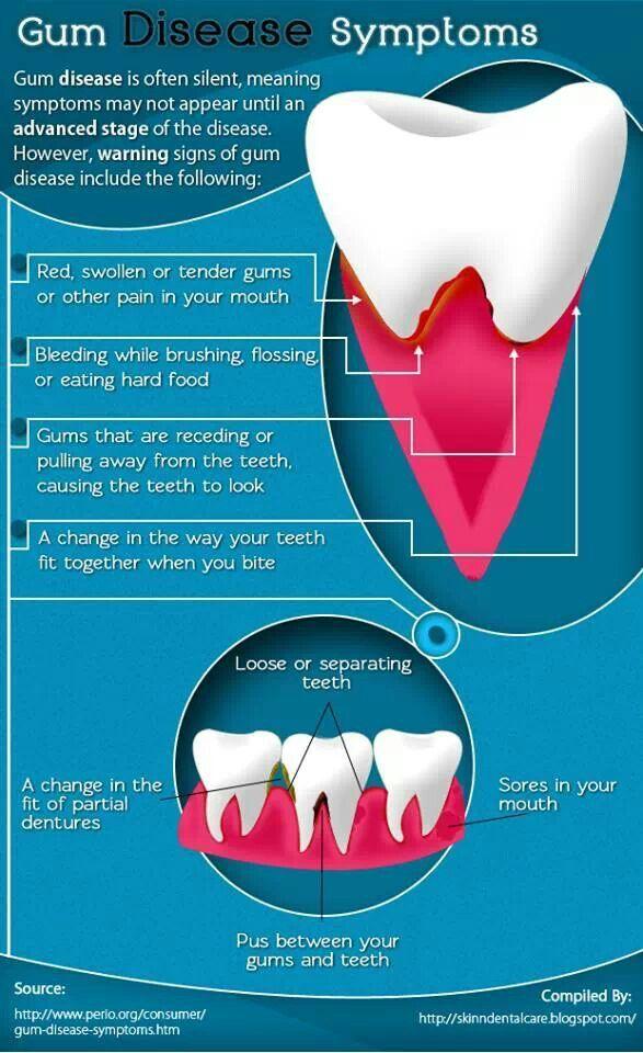 73 best Dental Assistant stuff images on Pinterest | Dental ...