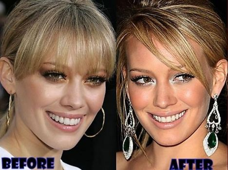 Hilary Duff Plastic Surgery Before After Always interesting what you can find when you type in elective surgery and other related terms
