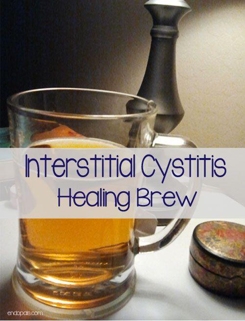 IC-Brew