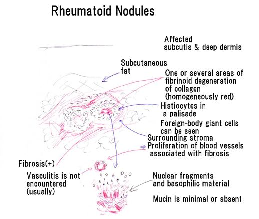 Rheumatoid nodules | Dermpedia Ugly things, that thank goodness are still small on my arms around my elbows.