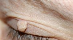 Tyto nezhoubné útvary na kůži se tvoří v průběhu života skoro každému. Říká se jim fibromy a návštěvy lékaře není nutná, když víte, jak se jich zbavit. A je to jednodušší, než byste čekali...