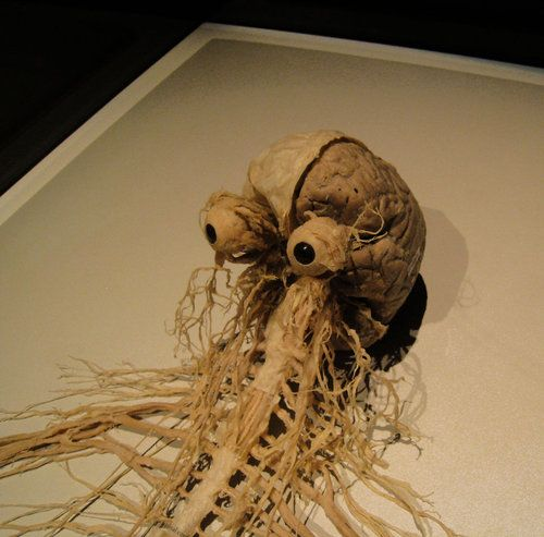 Human brain and spinal nerves. Looks a bit like an octopus.