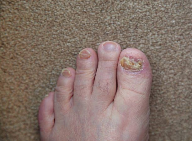 How To Get Rid Of Nail Fungus Under Artificial Nails Natural Remedies For Nail Fungus Toenail Fungus Removal Toenail Fungus Cure Toenail Fungus Home Remedies