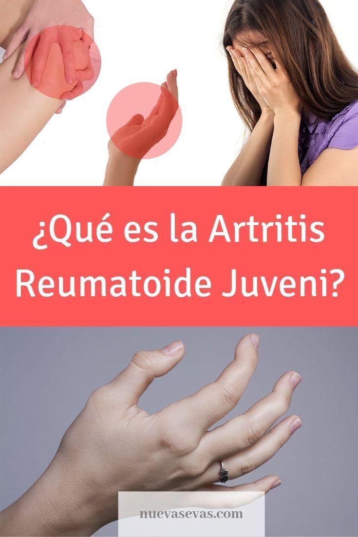 artritis reumatoide sumario perdida de balanza repentinar
