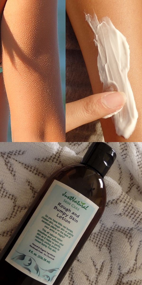 Rough Bumpy Skin Lotion -  Used if you have little red bumps, chicken skin, rough skin or patchy keratosis pilaris on the back of your arms or thighs.
