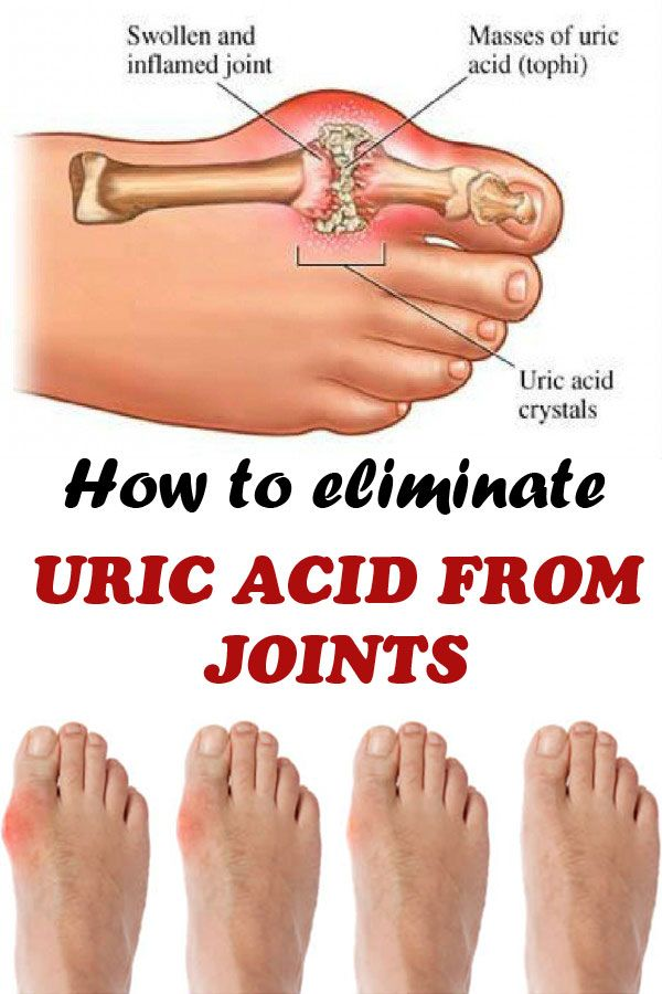 Excess uric acid is deposited in the joints and develops gout. Here are some tricks to decrease the uric acid level.