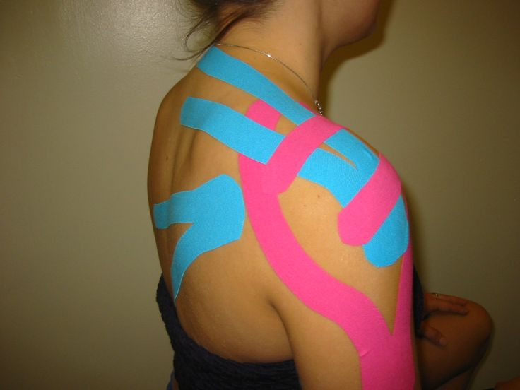 how to use kinesiology tape on shoulder