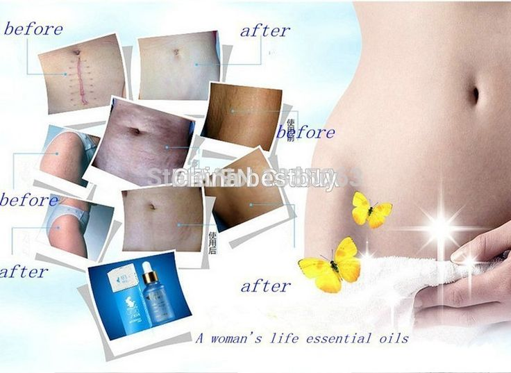 Poderosa para estrias maternidade estrias pós-parto óleo essencial obesidade gravidez remoção creme removedor de cicatriz reparação alishoppbrasil