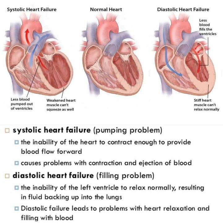 Systolic vs. Diastolic Heart Failure