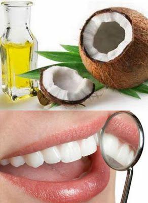 El aceite de coco ayuda a quitar las bacterias que causan caries dentales.