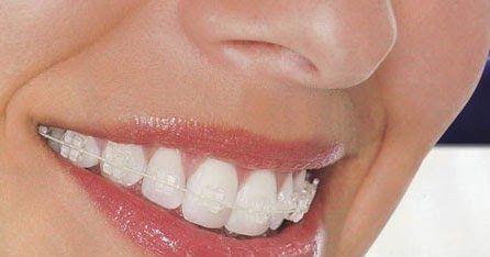 Lợi ích của việc niềng răng chỉnh nha