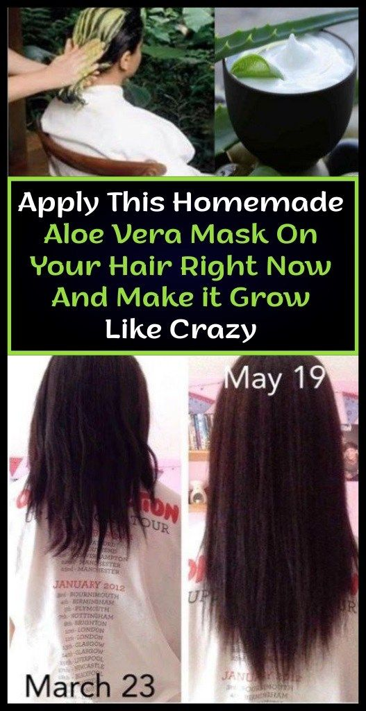 Home made Aloe Vera Masks On Your Hair Proper Now And Make it Develop Like Loopy