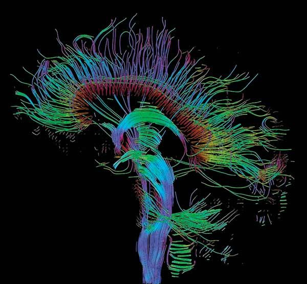 Diffusion MRI of the Brain: The location of nerve fibers is inferred by tracking the movement of water molecules along them.