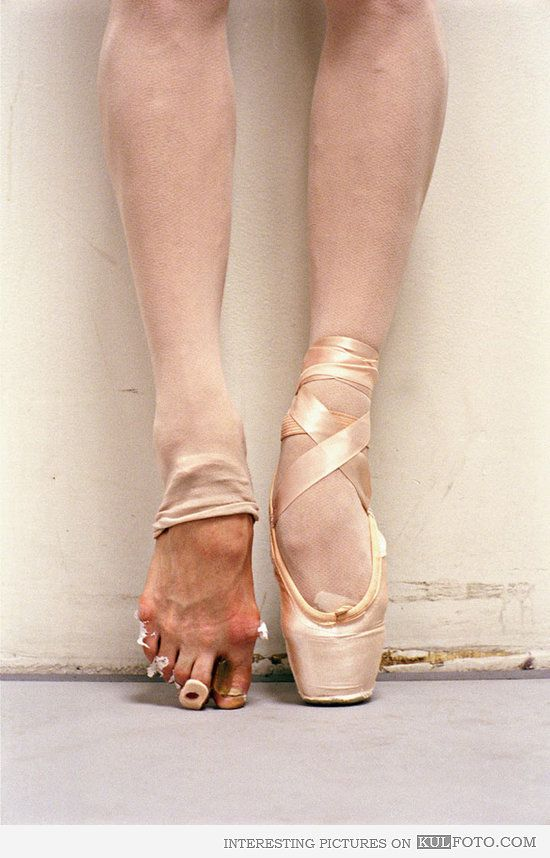 """Pretty ballet""....:( Ballerina feet - Picture of damage the ballet does to the feet of ballerinas."