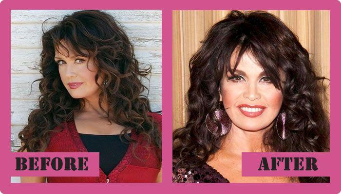 Marie Osmond Plastic Surgery Before And After Marie Osmond Plastic Surgery  #MarieOsmondplasticsurgery #MarieOsmond #gossipmagazines