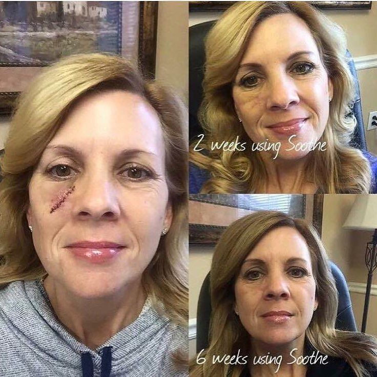 SOOTHe for 6 weeks after surgery - Rodan + Fields