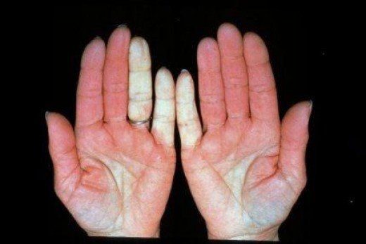 Essential oil blends useful in the treatment of Raynaud's disease, and Raynaud's syndrome.