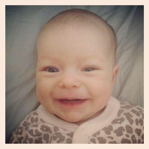 Neonatal acne around babies eyes