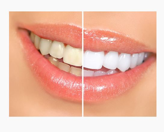 Crest 3D Teeth Whitening Strips are available online for sale. To get our quality products, visit at our website. https://crestwhitestrips.direct/