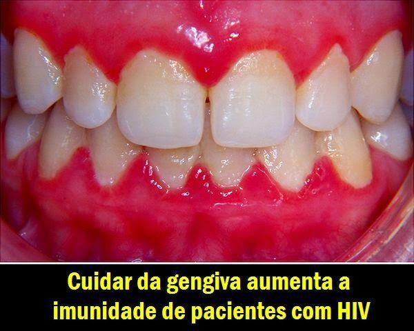 Cuidar da gengiva aumenta a imunidade de pacientes com HIV   OVI Dental