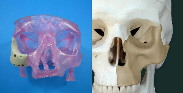 FDA gives the nod to a 3D-printed facial implant that can be customized for individual patients in need of facial-reconstruction surgery.