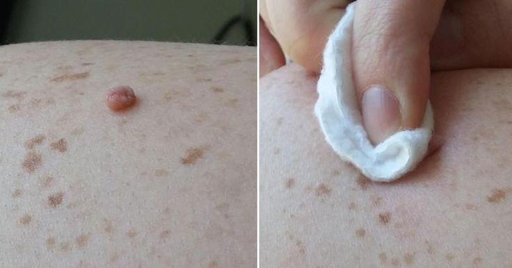 Használj almaecetet, hogy könnyedén eltávolítsd a bőrkinövéseket!