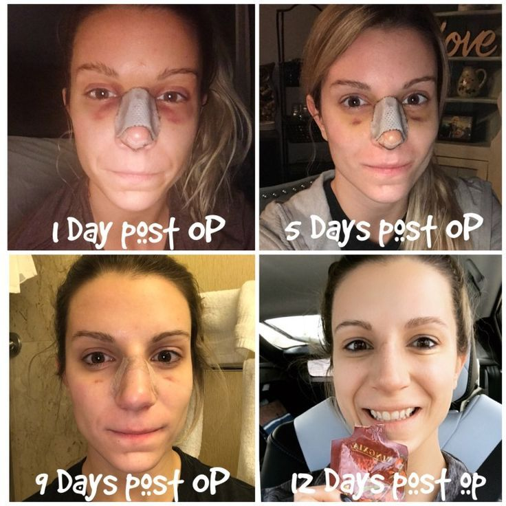 Septoplasty Rhinoplasty Recovery Using Essential Oils Natural Remedies Plastic Surgery Rhinoplasty Recovery Rhinoplasty Nose Job Recovery
