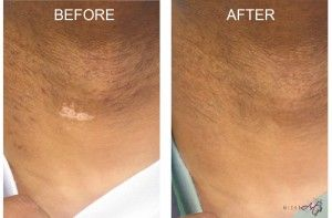 Before & After Photos of Scar Treatment by MicroArt Semi Permanent Makeup