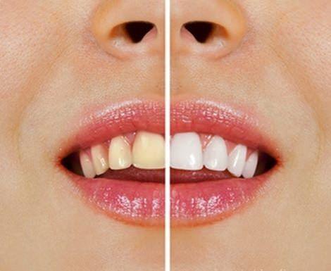 Doğal Malzemelerle Diş Beyazlatma - Sağlığa bir adım