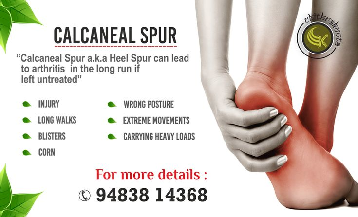 Calcaneal spur refers to the chronic pain that occurs at the hind end of our foot or under our heel or even beneath the sole of our foot. Abnormalities of the skin, nerves, bones, blood vessels, and soft tissues of the heel can all result in pain. Diagnosis can be done by taking x-rays, ultrasounds and in knowing the history. At Chitrakoota, our expert staff will diagnose and give you the right treatment that will heal your heel efficiently by effective means. #Calcanealspur #Heelspur #foot