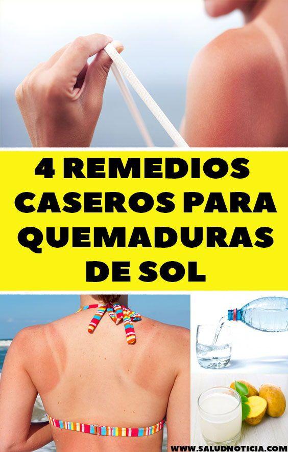 Remedios Caseros Para Quemaduras De Sol